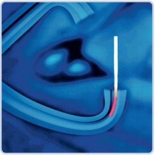 SmartPlug Punctum Plug