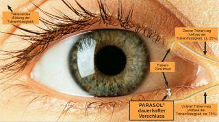Poster Trockenes Auge